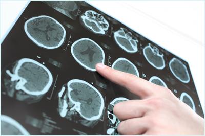 Schlaganfall erkennen - Kardiologen praxis westend Berlin