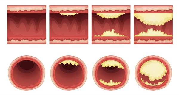Statine und Cholesterinsenker wirken gegen Arteriosklerose