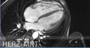 Herz MRT
