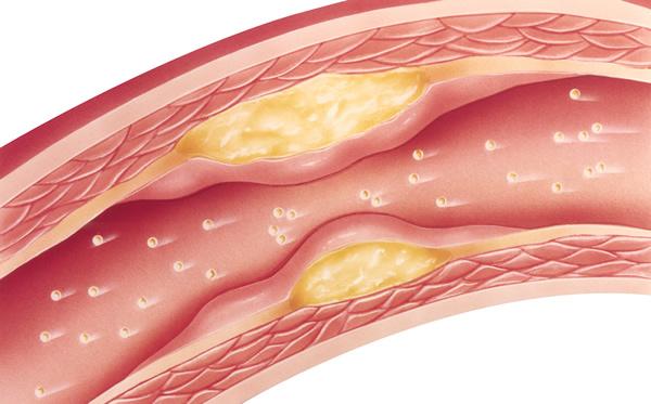 Arteriosklerose aufgrund zu hoher Cholesterinwerte